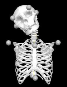 Flexión lateral activa