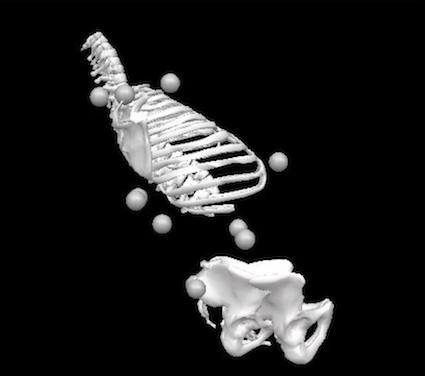 Valoracion 3D lumbar uproof
